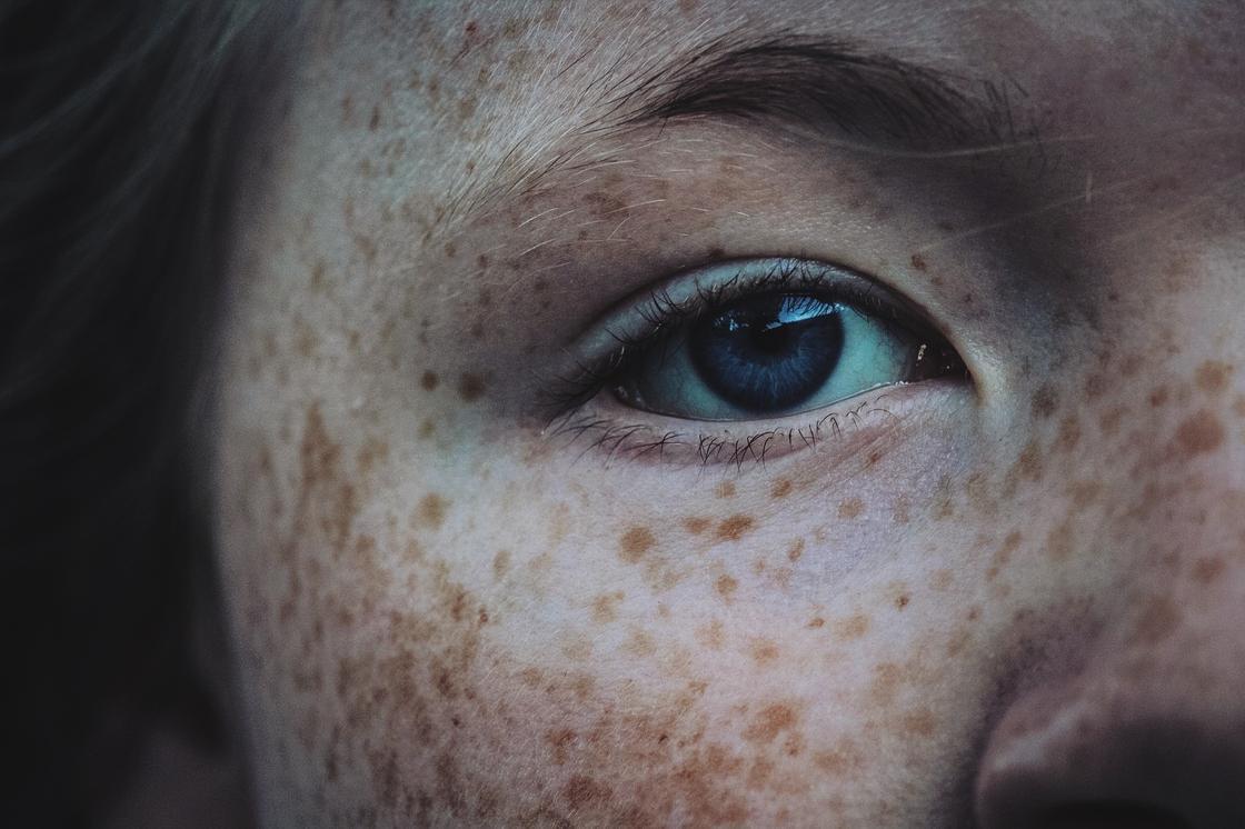 Лицо девушки с веснушками
