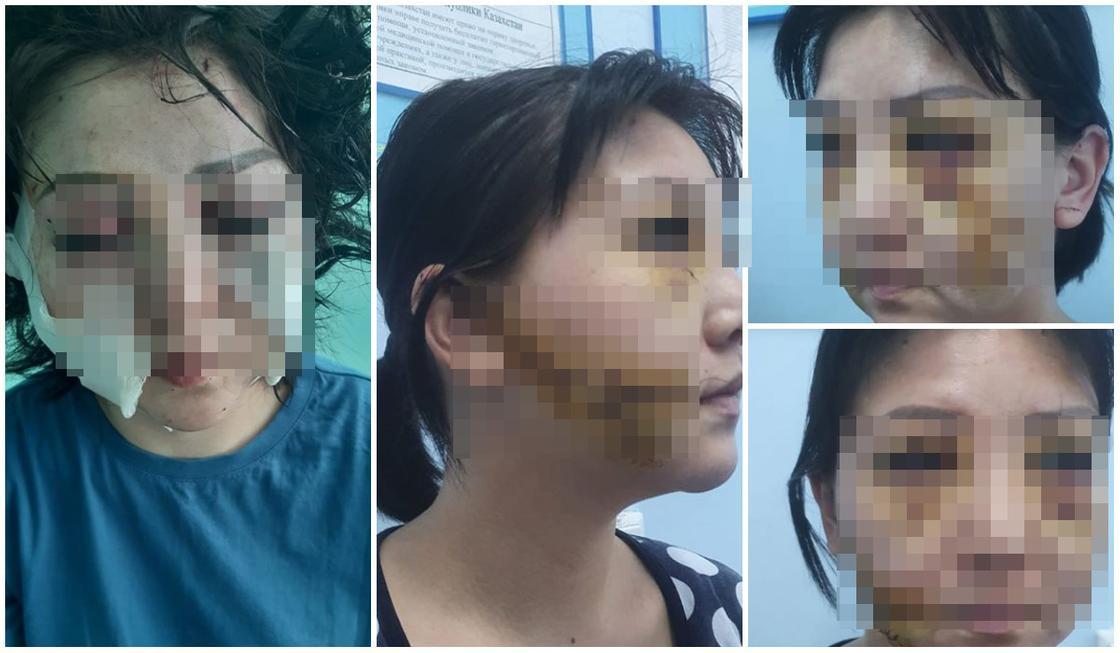 Актюбинка заявила, что бывший муж изрезал ей лицо