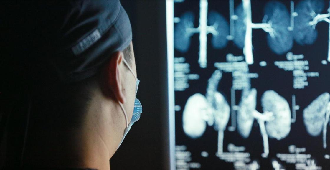 Повреждения легких нашли у тех, кто перенес коронавирус бессимптомно