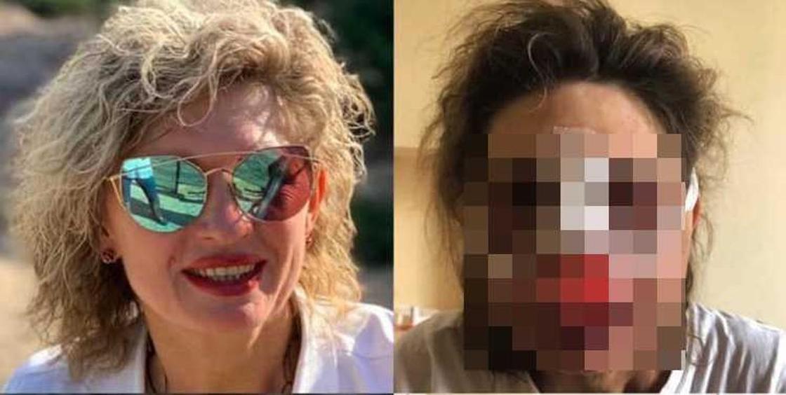Женского психолога жестоко избили возле собственного дома в Алматы