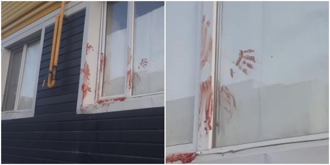 Мужчина чуть не убил жену, а после пытался перерезать себе горло в Шымкенте