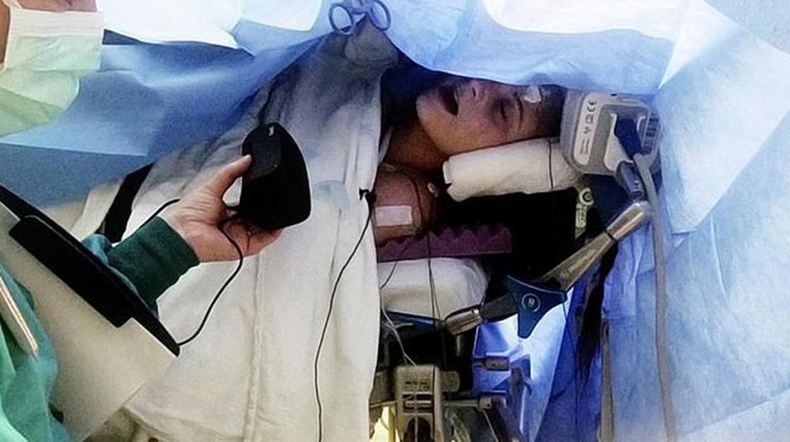 Хирург заставил певицу петь во время операции на её мозге, и она справилась