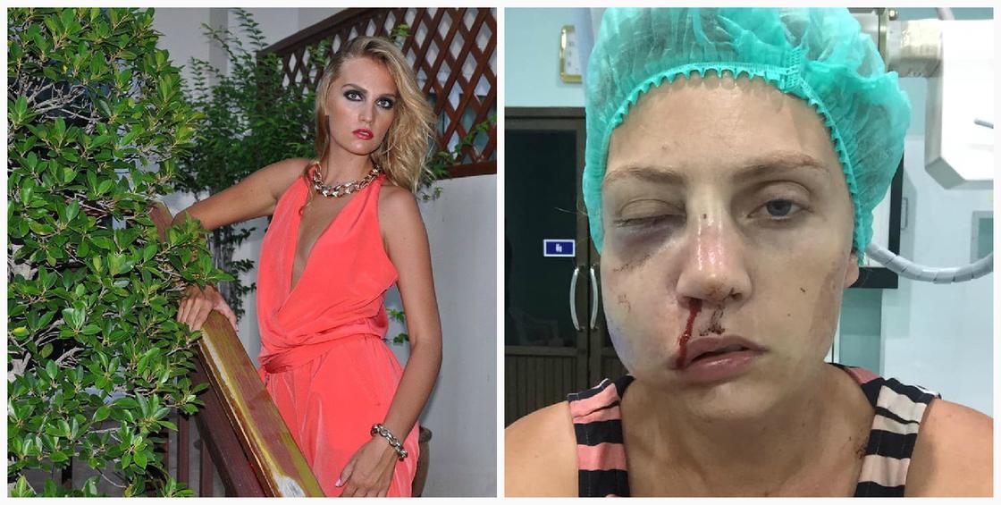 """""""Очнулась в луже собственной крови"""": муж пробил голову модели на глазах у 2-летнего сына (фото)"""