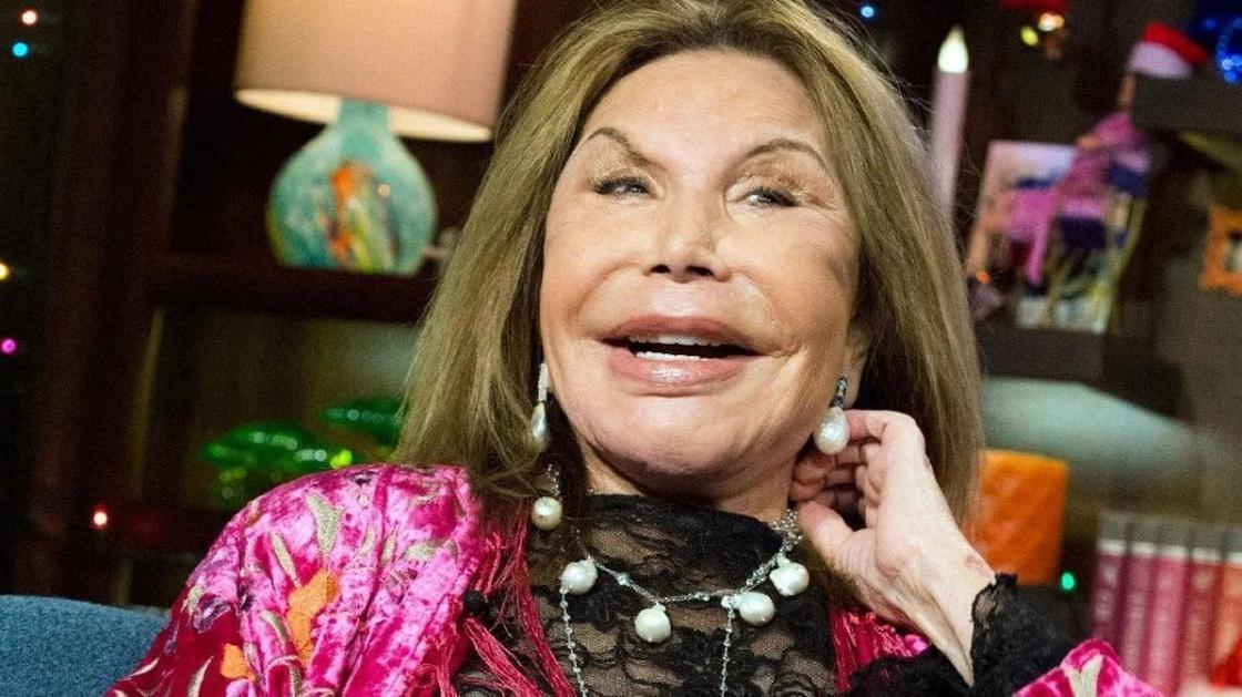 Умерла рекордсменка по пластическим операциям и звезда телешоу в США