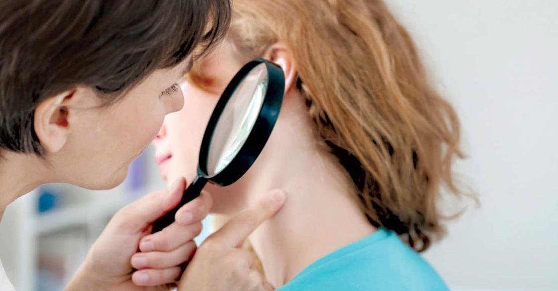 9 проблем с кожей, которые сигнализируют о более страшных заболеваниях