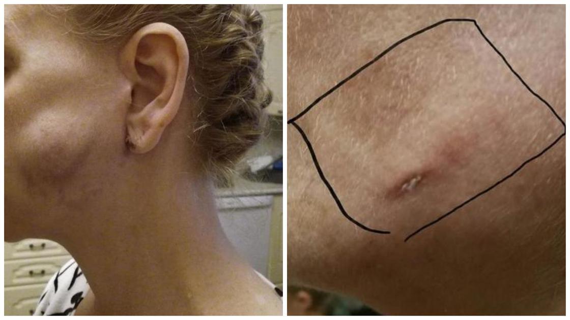 Медики известной частной клиники оставили салфетку под кожей лица пациентки