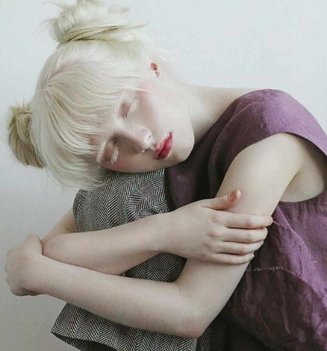 Сән әлемін бағындырған альбинос орыс қызы жайлы не білеміз?
