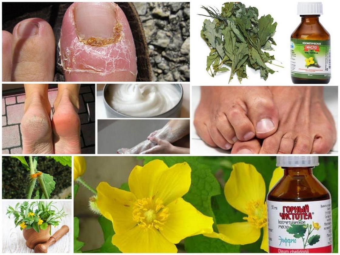 Грибок ногтей: причины, симптомы, лечение и профилактика