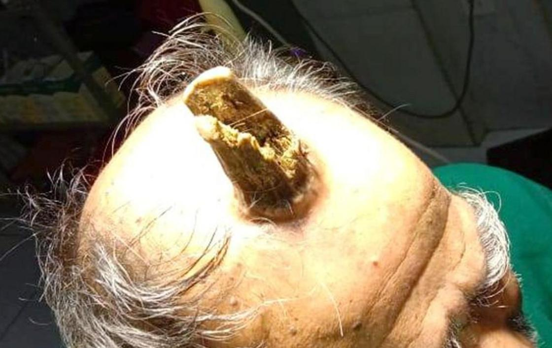10-сантиметровый «дьявольский» рог удалили с головы мужчины врачи