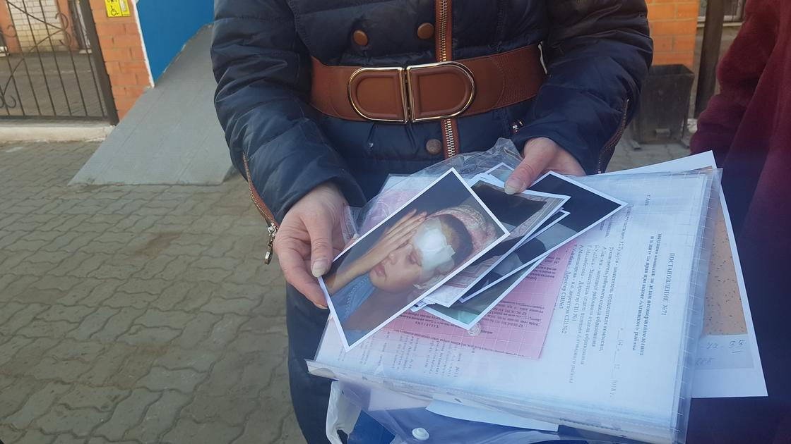 Ирина Самарская төбелестен кейінгі қызының суретін көрсетуде Фото: NUR.KZ