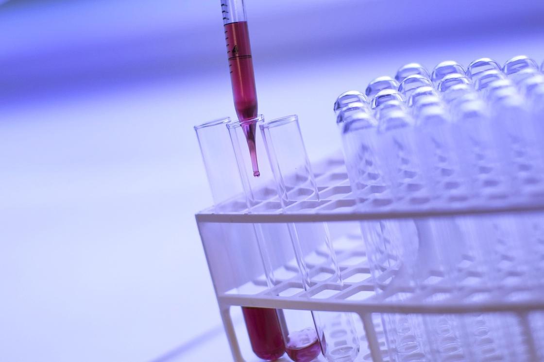 Елімізде коронавирус белгілері жоқ тағы 630 адам анықталды