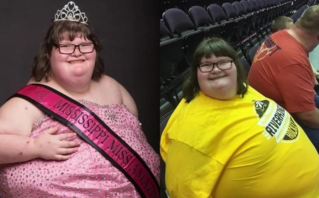 Вечно голодная девочка стала королевой красоты