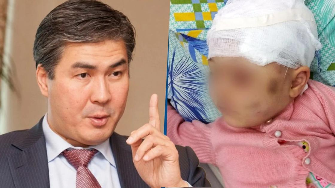 Астана әкімі соққыға жығылған қыздың ісін өз бақылауына алды