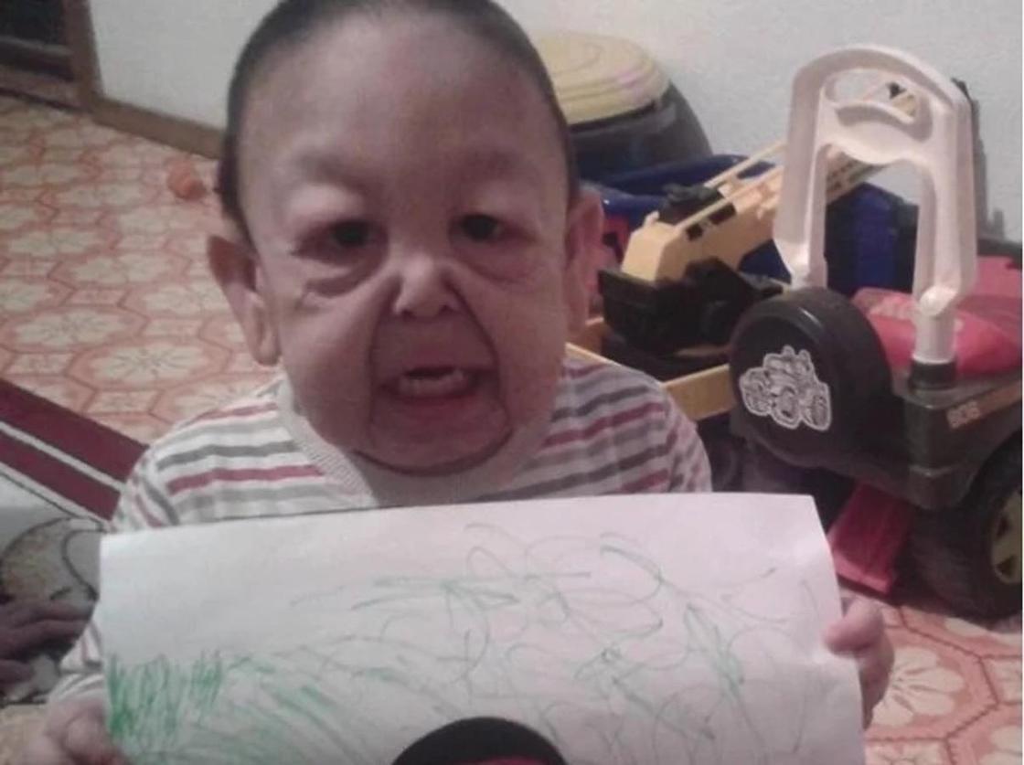 """Как живет """"мальчик с лицом старца"""" из Астаны (фото)"""
