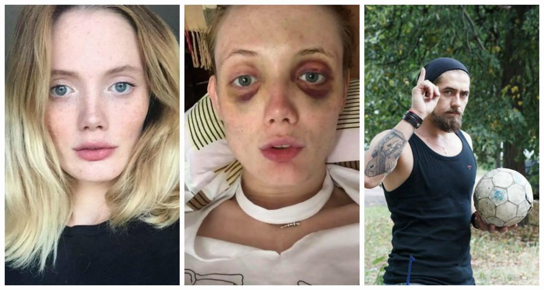 """""""Засовывал мне деньги в рот и срывал трусы"""": известную модель жестоко избил муж"""