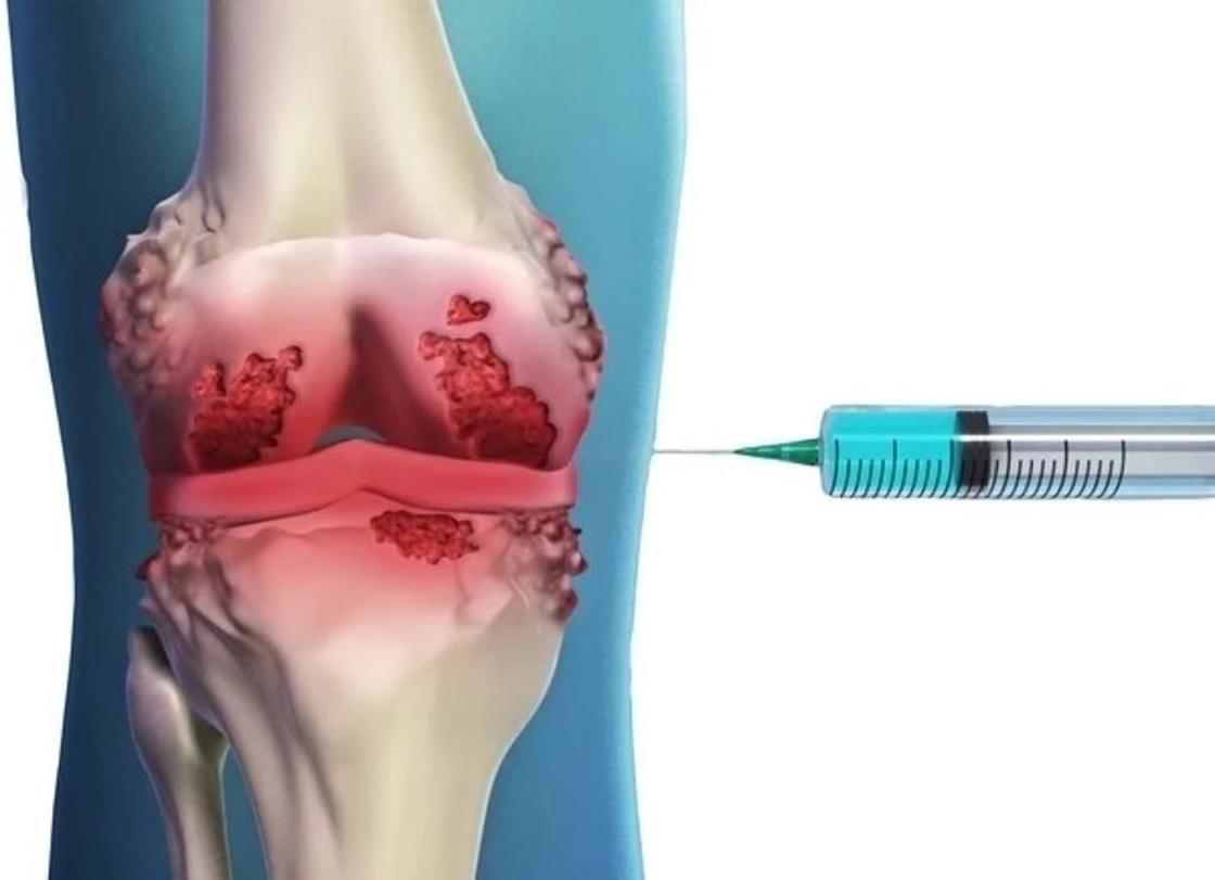 Инновационное безболезненное лечение артроза стало доступно