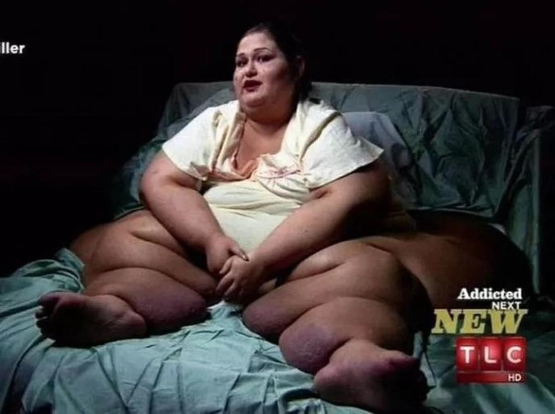 Шокирующее похудение: женщина сбросила 400 кг
