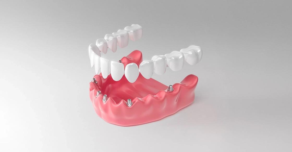 Зубы за один день – зубы на один день?