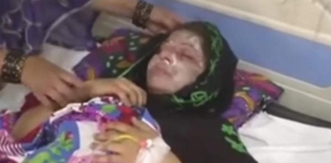 Мужчина облил спящую жену кислотой за то, что родила дочь (видео)