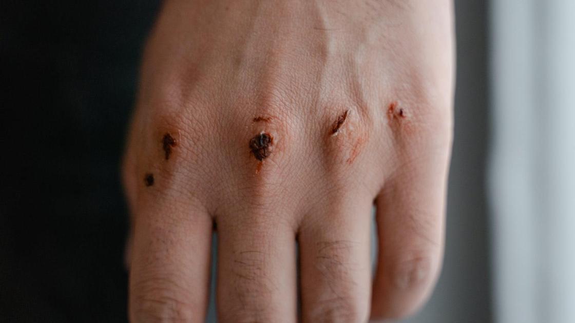 Рука со следами ссадин