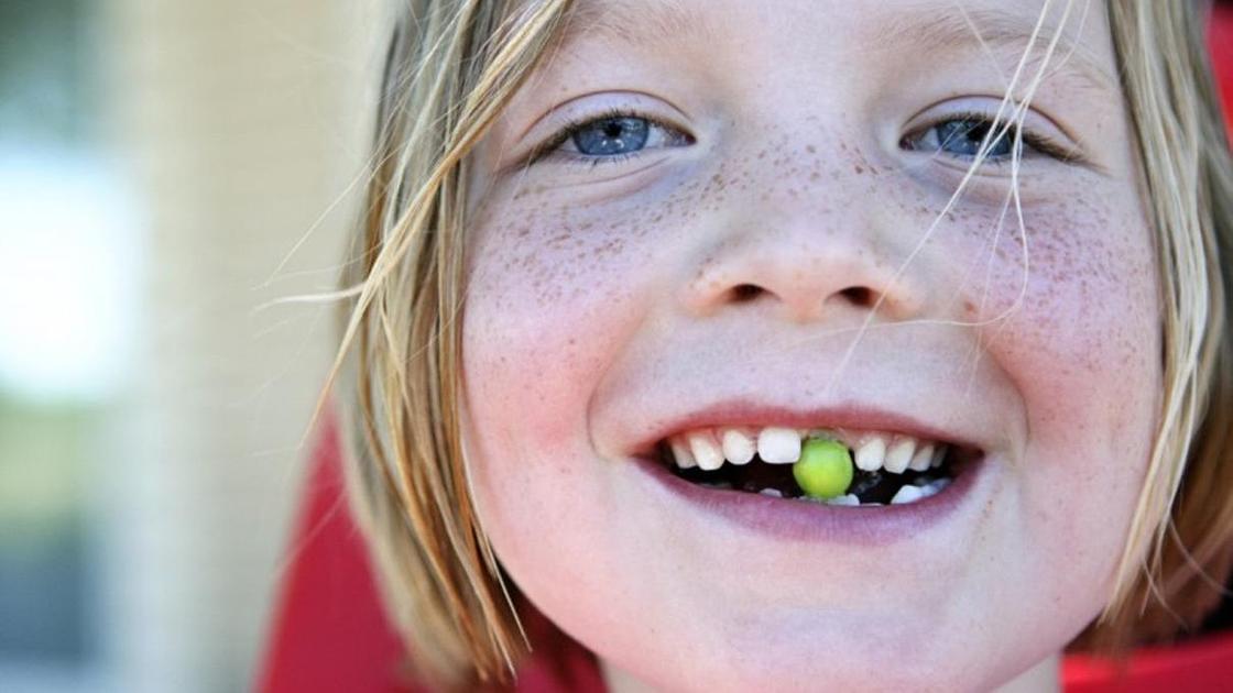 девочка без переднего зуба