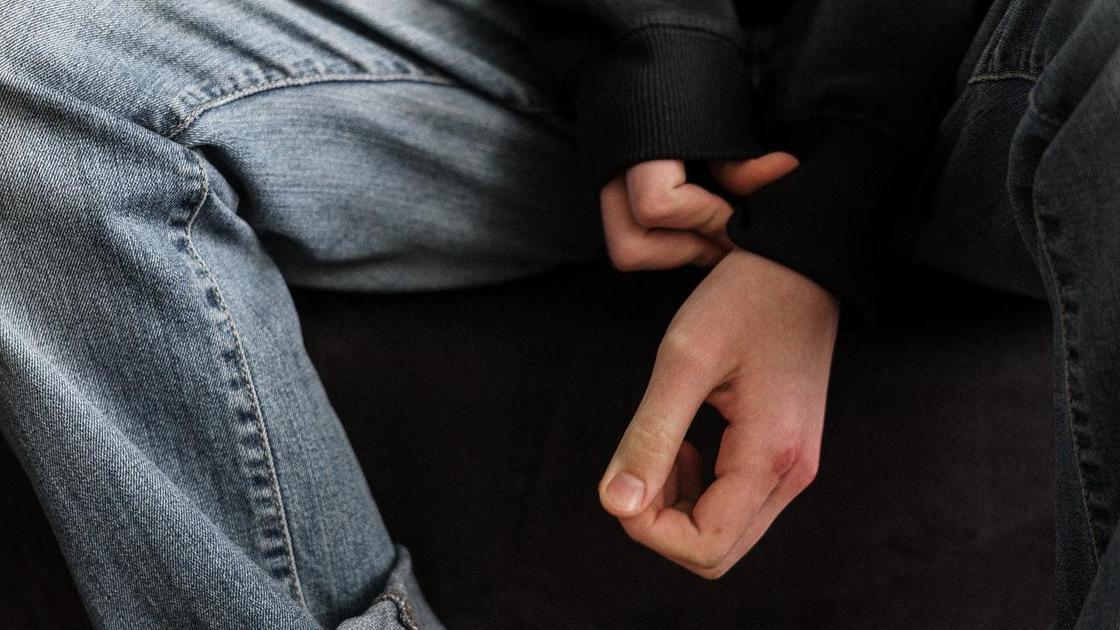 Мальчик прикрывает искалеченные руки