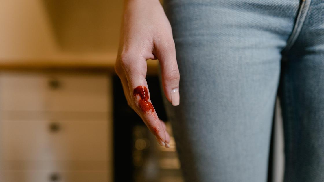 Женщина с кровью на пальце