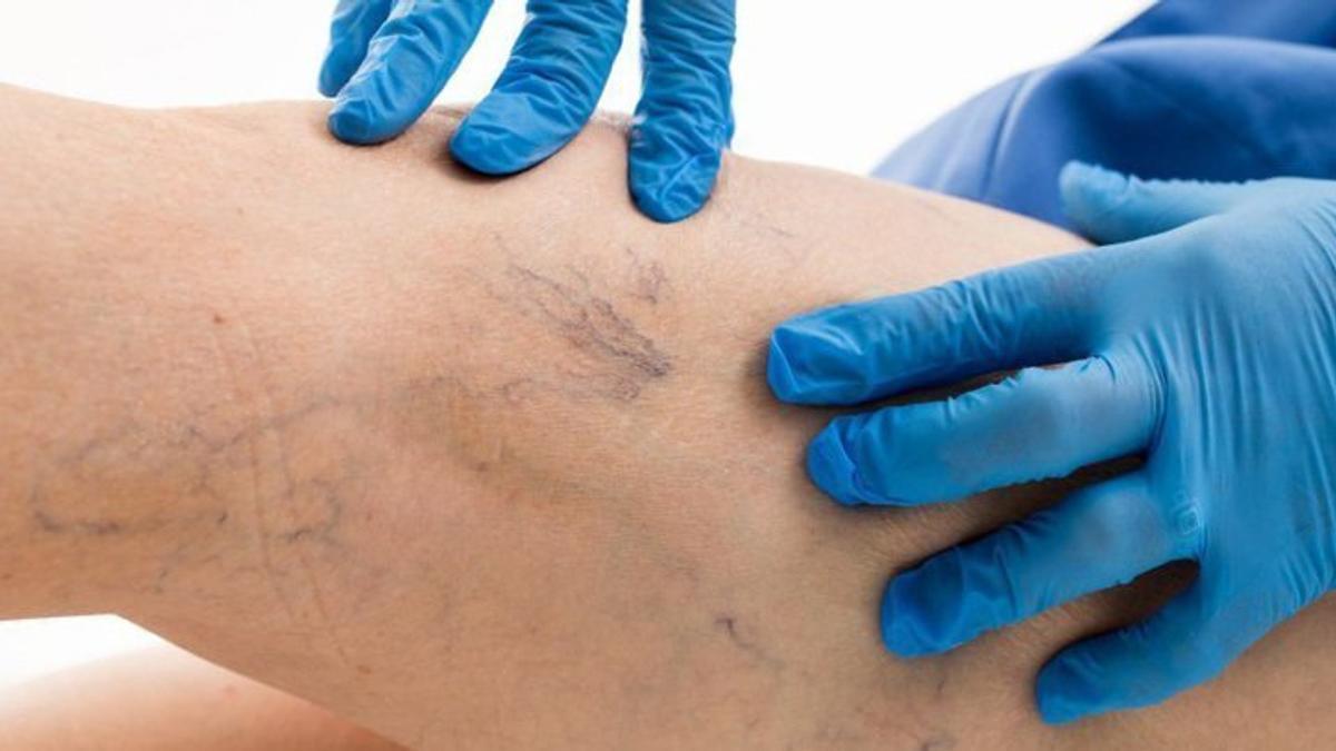 vivita cu vene varicoase injecții în venele în varicose vene recenzii