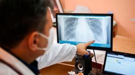 Врач показывает пальцем на рентгеновский снимок
