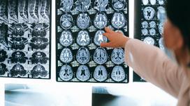 Врач смотрит на МРТ головного мозга