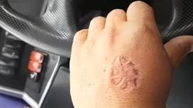 Пассажирка укусила водителя в Алматы