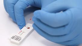 Лаборант проводит анализ на коронавирус