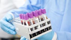 медик держит в руках пробирки с анализами