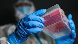 Лаборант держит в руках органайзер с пробирками