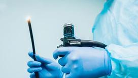 Врач держит в руках эндоскоп