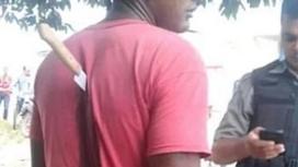 Арқасына қадалған пышаққа қарамастан алаңсыз отырған адам жұртты таңырқатты (фото)