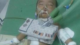 Врачи рассказали о состоянии младенца, в теле которого нашли 16 иголок