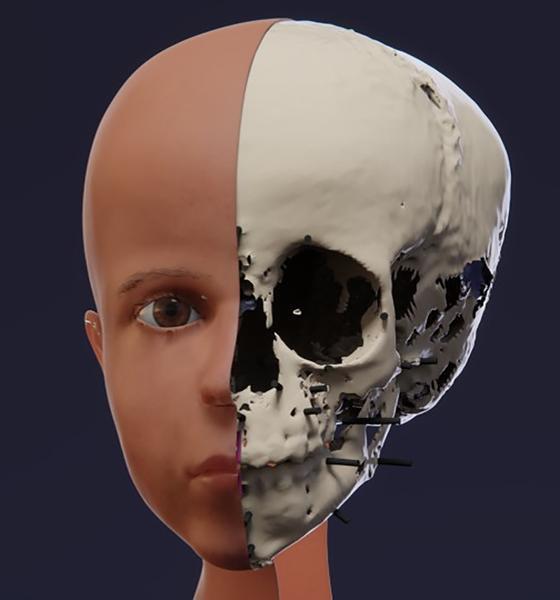 Реконструкция лица