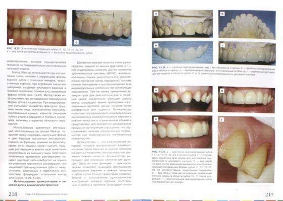 Как отбелить зубы дома без вреда для эмали