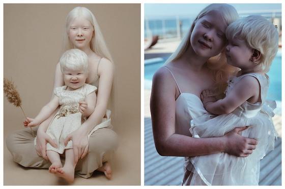 ФОТО Сестры-альбиносы из Актау покоряют Instagram