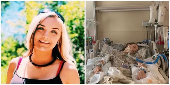 18-летняя девушка оказалась в коме и чуть не умерла из-за вейпа