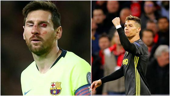 Лига Чемпионов: Месси разбили лицо, Роналду установил рекорд (фото, видео)