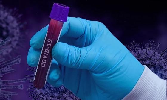 15 новых случаев: стали известны подробности о зараженных коронавирусом в Казахстане