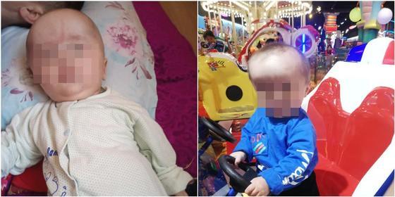Живущие во времянке казахстанцы ищут денег на ортопедический шлем для сына с энцефалопатией