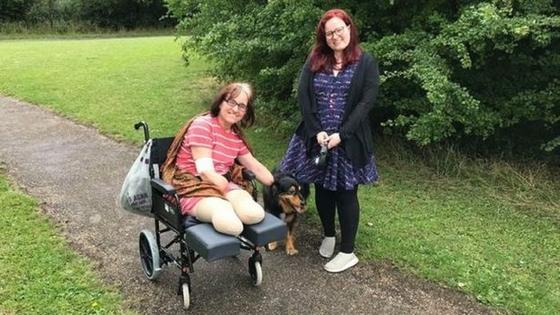 Женщина лишилась рук и ног после победы над коронавирусом