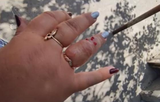 палец Натальи сильно опух после укуса осы