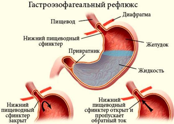Изжога: причины, лечение и профилактика