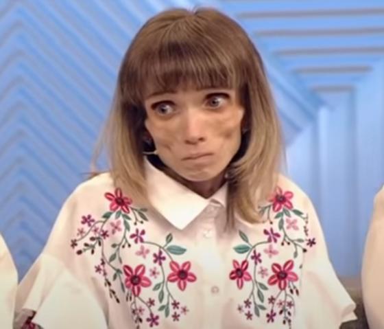 Худая девушка в вышитой блузке. Кристина Корягина