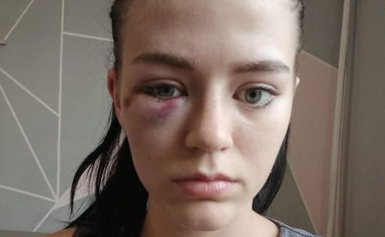 Девушек жестоко избили в центре Алматы