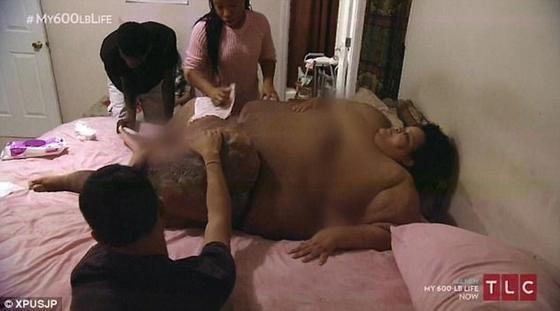 340-килограммовая женщина